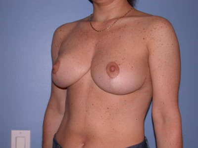 Breast Reduction Gallery - Patient 4757297 - Image 8