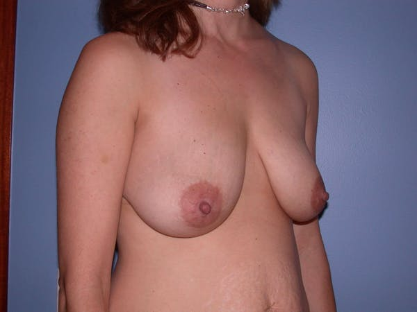 Breast Lift Gallery - Patient 4757299 - Image 4