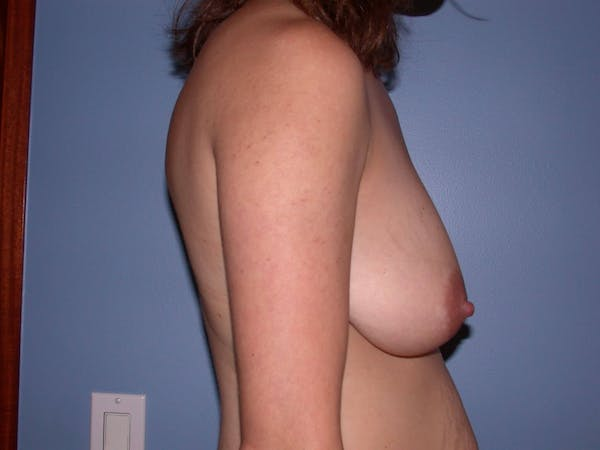 Breast Lift Gallery - Patient 4757299 - Image 5