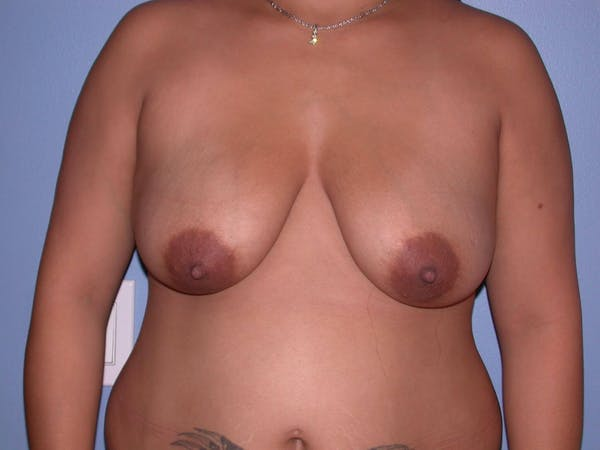 Breast Reduction Gallery - Patient 4757302 - Image 1