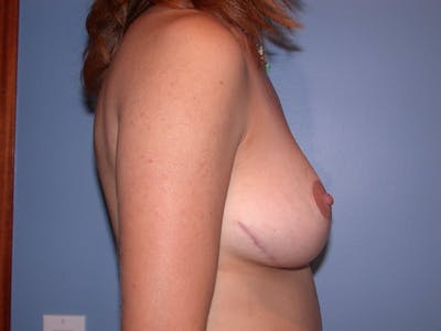 Breast Lift Gallery - Patient 4757299 - Image 6