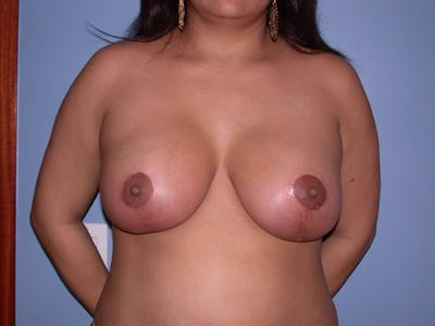 Breast Reduction Gallery - Patient 4757302 - Image 2