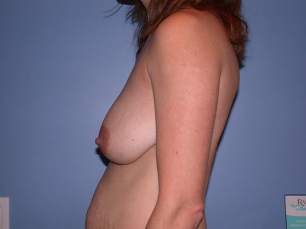 Breast Lift Gallery - Patient 4757299 - Image 7