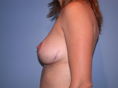 Breast Lift Gallery - Patient 4757299 - Image 8