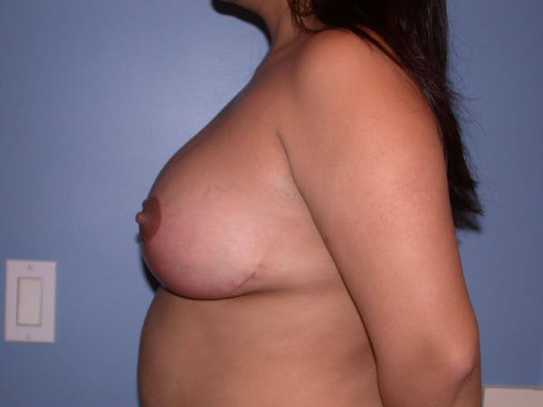Breast Reduction Gallery - Patient 4757302 - Image 4