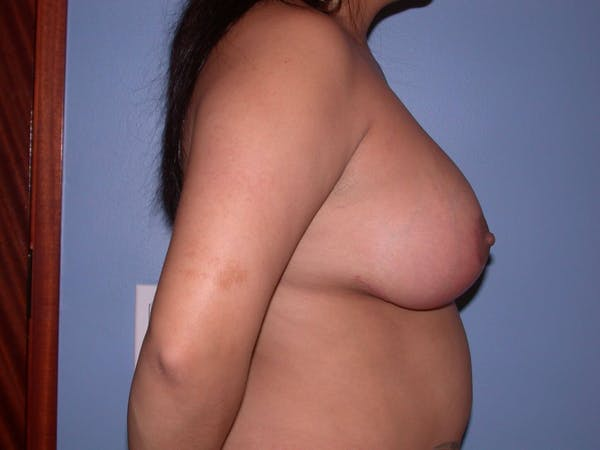 Breast Reduction Gallery - Patient 4757302 - Image 6