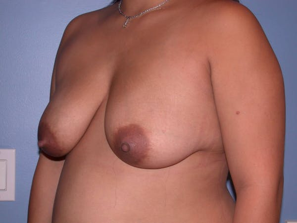 Breast Reduction Gallery - Patient 4757302 - Image 7