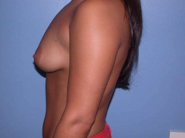 Breast Lift Gallery - Patient 4757304 - Image 5