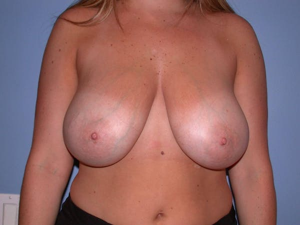 Breast Reduction Gallery - Patient 4757307 - Image 1
