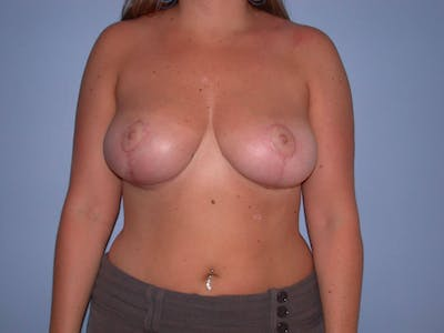 Breast Reduction Gallery - Patient 4757307 - Image 2