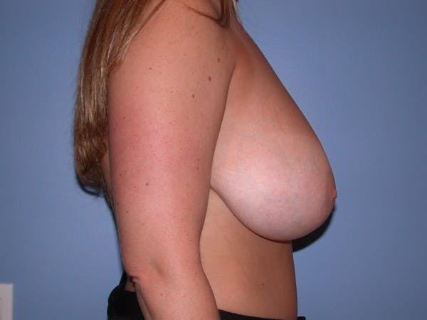 Breast Reduction Gallery - Patient 4757307 - Image 3