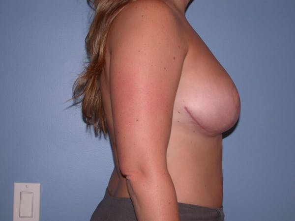 Breast Reduction Gallery - Patient 4757307 - Image 4