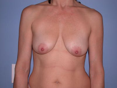 Breast Lift Gallery - Patient 4757308 - Image 1
