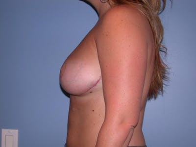 Breast Reduction Gallery - Patient 4757307 - Image 6