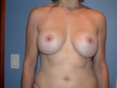 Breast Lift Gallery - Patient 4757308 - Image 2