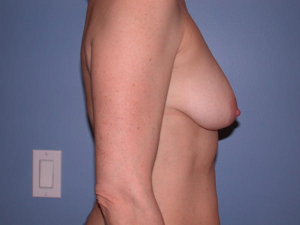 Breast Lift Gallery - Patient 4757308 - Image 3