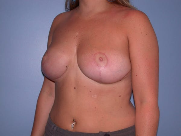 Breast Reduction Gallery - Patient 4757307 - Image 8