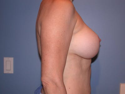 Breast Lift Gallery - Patient 4757308 - Image 4