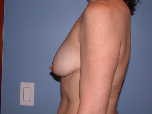Breast Lift Gallery - Patient 4757308 - Image 5