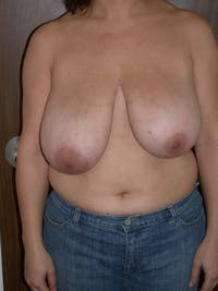 Breast Reduction Gallery - Patient 4757309 - Image 1