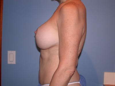 Breast Lift Gallery - Patient 4757308 - Image 6