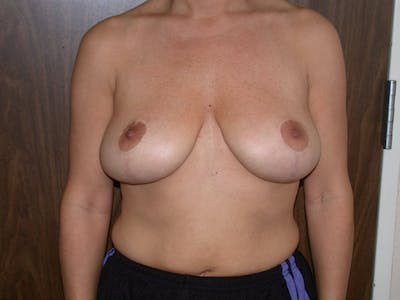 Breast Reduction Gallery - Patient 4757309 - Image 2