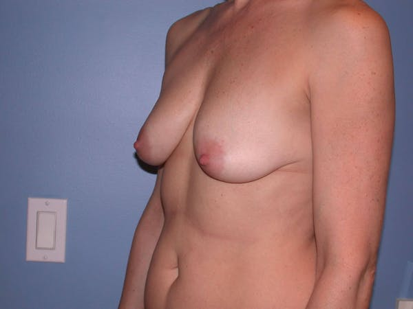 Breast Lift Gallery - Patient 4757308 - Image 7