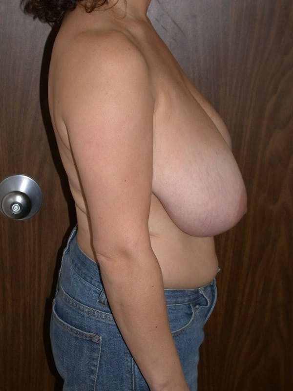 Breast Reduction Gallery - Patient 4757309 - Image 3