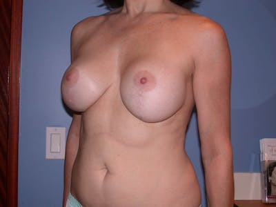Breast Lift Gallery - Patient 4757308 - Image 8