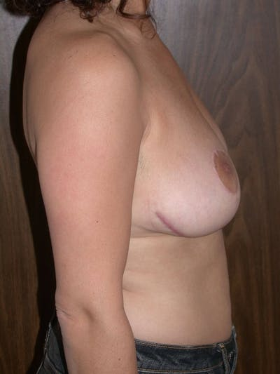 Breast Reduction Gallery - Patient 4757309 - Image 4