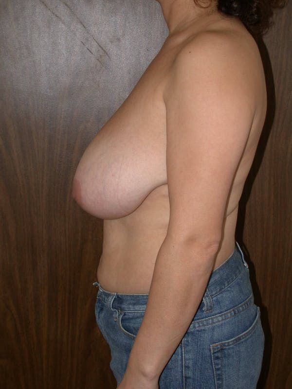 Breast Reduction Gallery - Patient 4757309 - Image 5