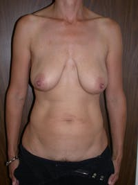 Breast Lift Gallery - Patient 4757312 - Image 1