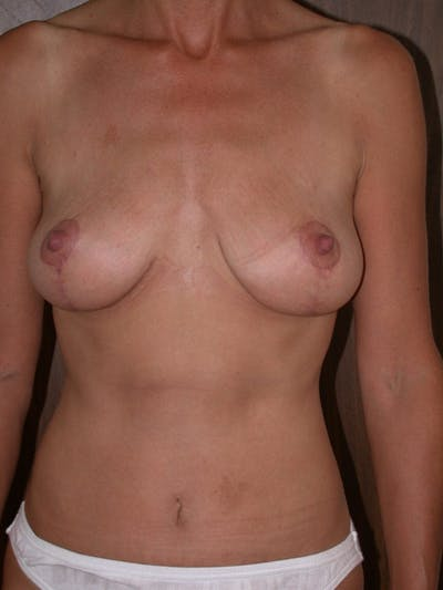 Breast Lift Gallery - Patient 4757312 - Image 2