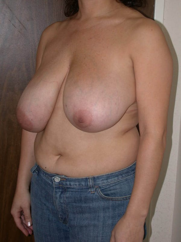 Breast Reduction Gallery - Patient 4757309 - Image 7