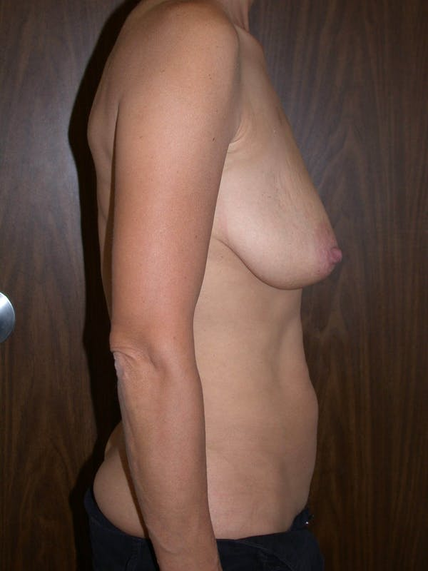 Breast Lift Gallery - Patient 4757312 - Image 3