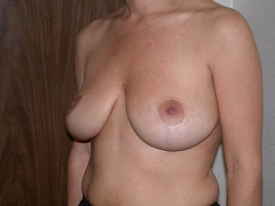 Breast Reduction Gallery - Patient 4757309 - Image 8