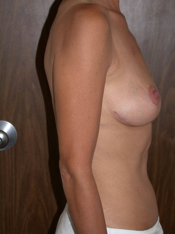 Breast Lift Gallery - Patient 4757312 - Image 4