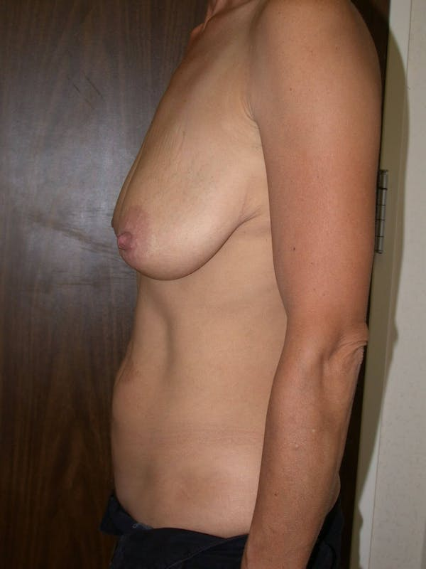 Breast Lift Gallery - Patient 4757312 - Image 5