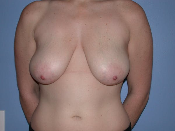 Breast Reduction Gallery - Patient 4757314 - Image 1