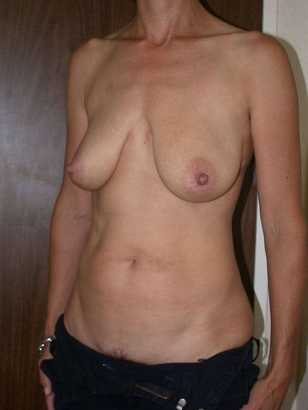 Breast Lift Gallery - Patient 4757312 - Image 7