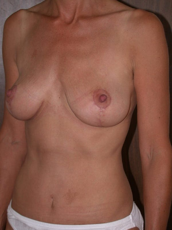Breast Lift Gallery - Patient 4757312 - Image 8