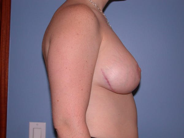Breast Reduction Gallery - Patient 4757314 - Image 4