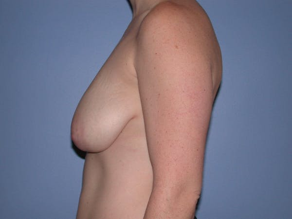 Breast Reduction Gallery - Patient 4757314 - Image 5