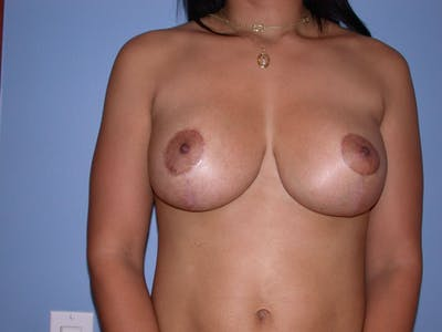 Breast Lift Gallery - Patient 4757318 - Image 2