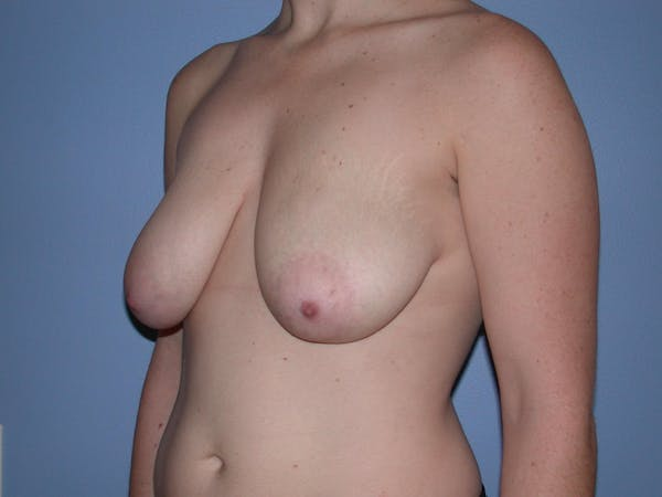 Breast Reduction Gallery - Patient 4757314 - Image 7