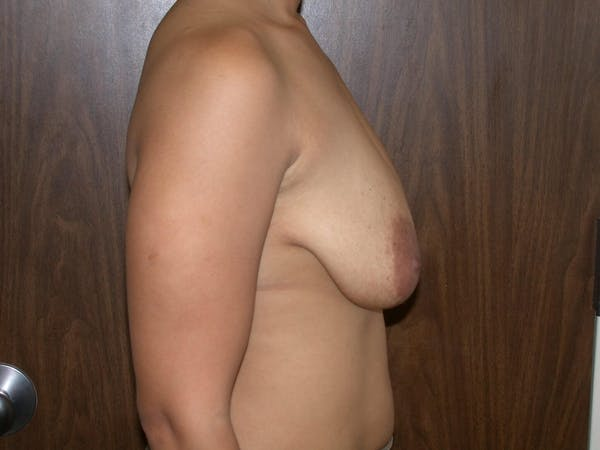 Breast Lift Gallery - Patient 4757318 - Image 5