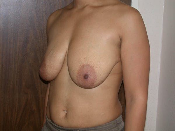 Breast Lift Gallery - Patient 4757318 - Image 7