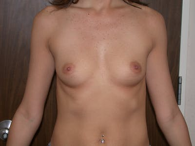 Breast Augmentation Gallery - Patient 4757328 - Image 1