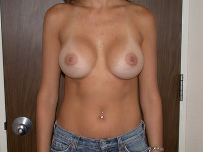 Breast Augmentation Gallery - Patient 4757328 - Image 2