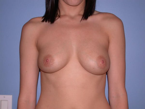 Breast Augmentation Gallery - Patient 4757330 - Image 1